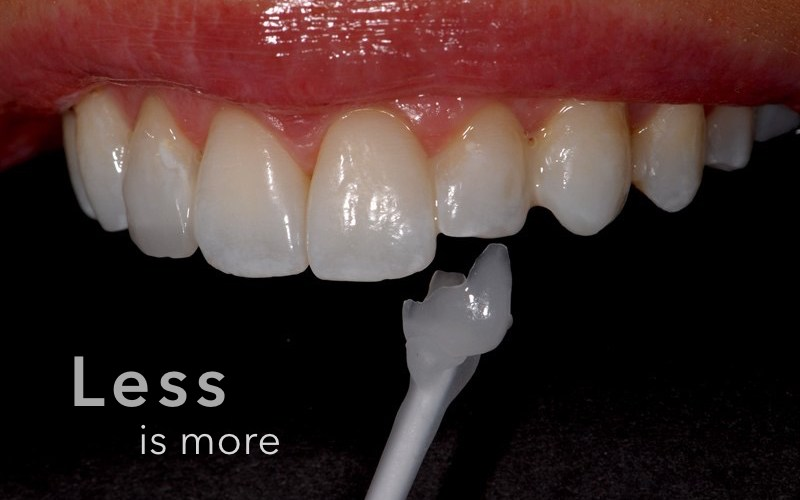 HBDS Minimally invasive dentistry