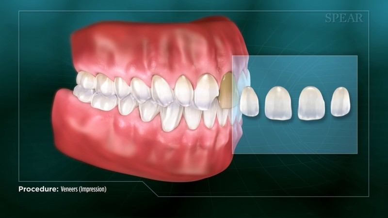 Veneers - Educational Video