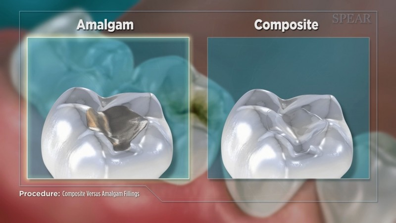 Composite vs Amalgam Filling - Educational Video