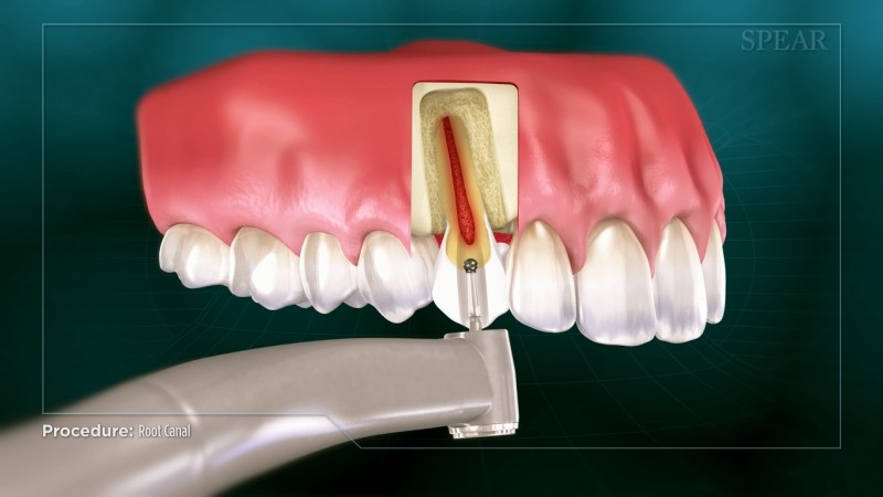 Root Canal - Educational Video