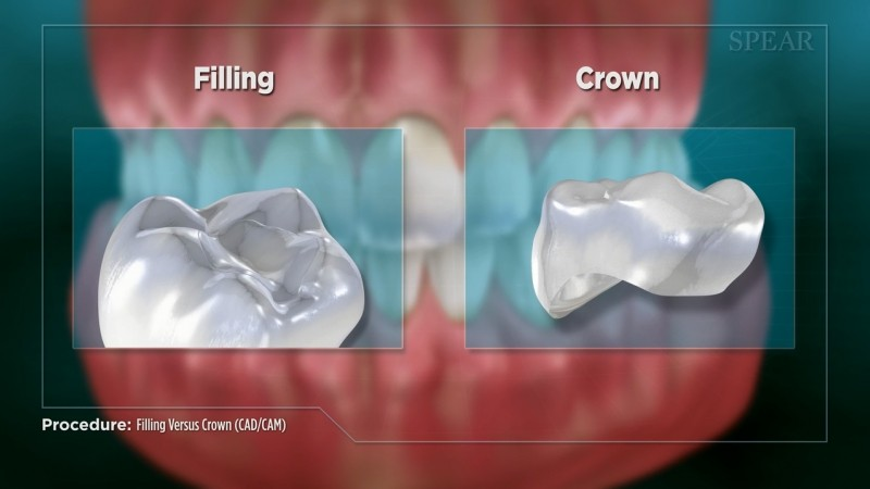 Filling vs Crown - Educational Video