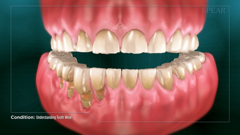 Understanding tooth wear - Educational Video