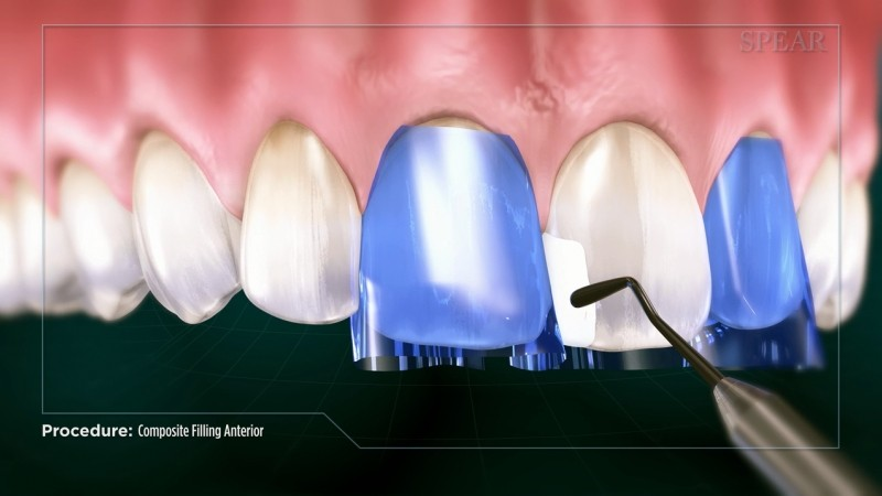 Composite filling (anterior) - Educational Video